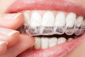 Las 7 mejores aplicaciones de blanqueamiento dental de 2020 12